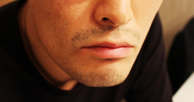 青髭永久脱毛