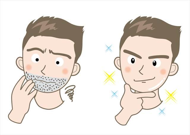 髭脱毛後悔