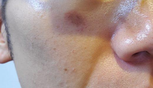 メンズシミ消しにレーザーは効果的?恥ずかしいけど皮膚科行ってきた