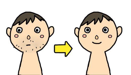 青髭の永久脱毛!クリーム【レーザー】髭剃り、どれが1番キレイ?